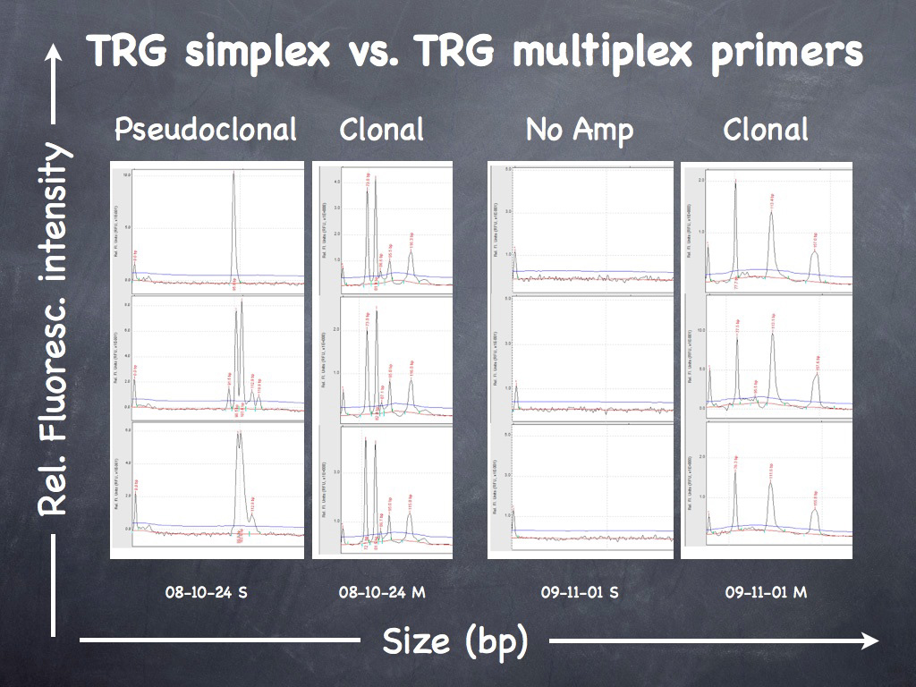Fig. 13. Inflamed NECTCL. Molecular clonality - TRG (T cell receptor gamma locus) - clonal result in triplicate.