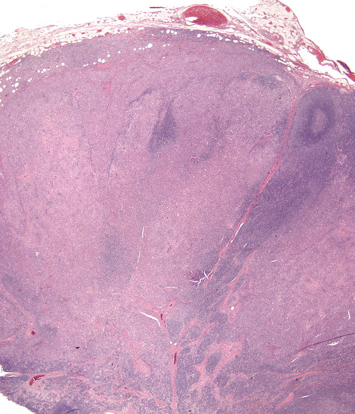 Fig. 8. Cutaneous histiocytosis - Lymph node. Effacement of trabeculae, capsule and parenchyma by a histiocytic infiltrate.