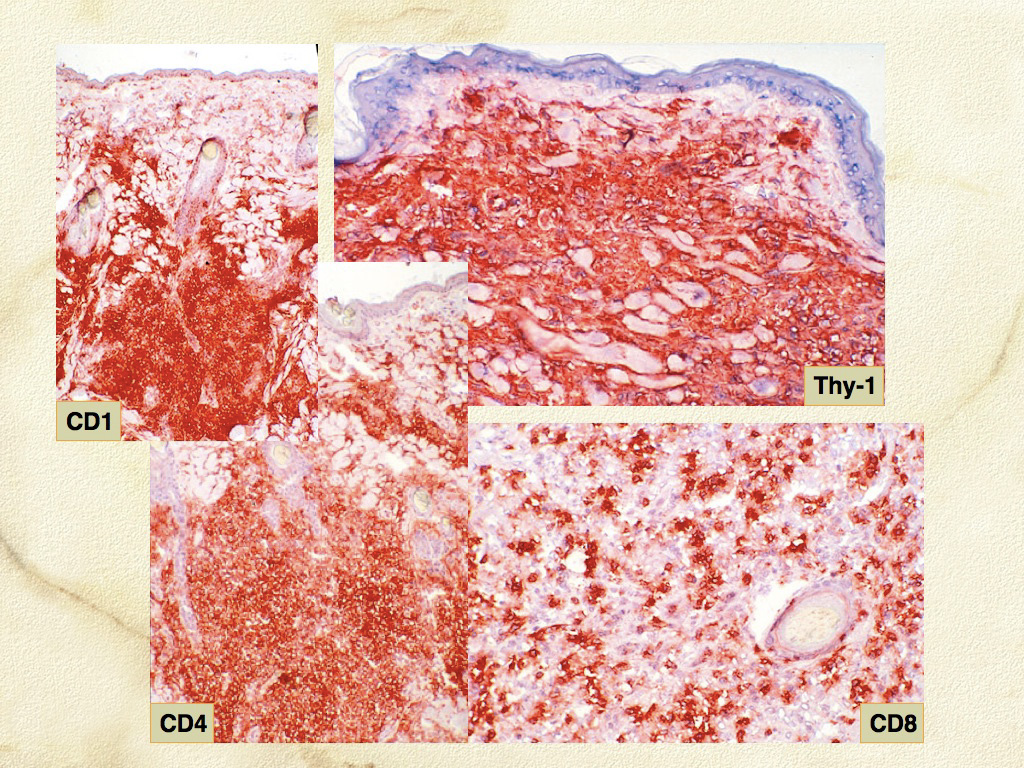 Fig. 9. Cutaneous histiocytosis - Skin. Frozen section immunostaining. Histiocytes are CD1a+CD4+CD90+ (Thy-1 = CD90).